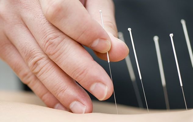 Acupuncture: une question d'équilibre
