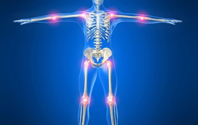 arthritis-arthrite
