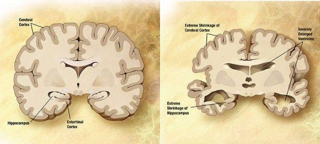 cerveau_Alzheimer-brain