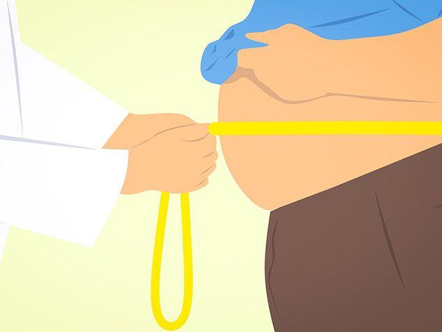 obesity obésité